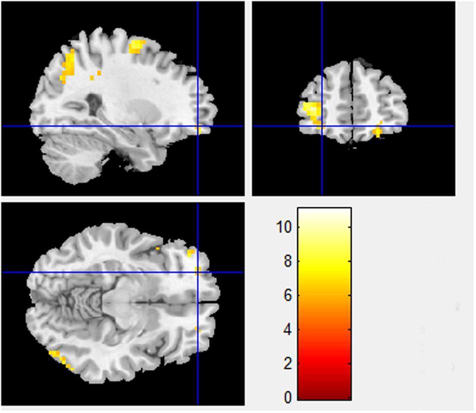 Как улучшить мозг. Выпуск 9: просоциальное поведение на фМРТ