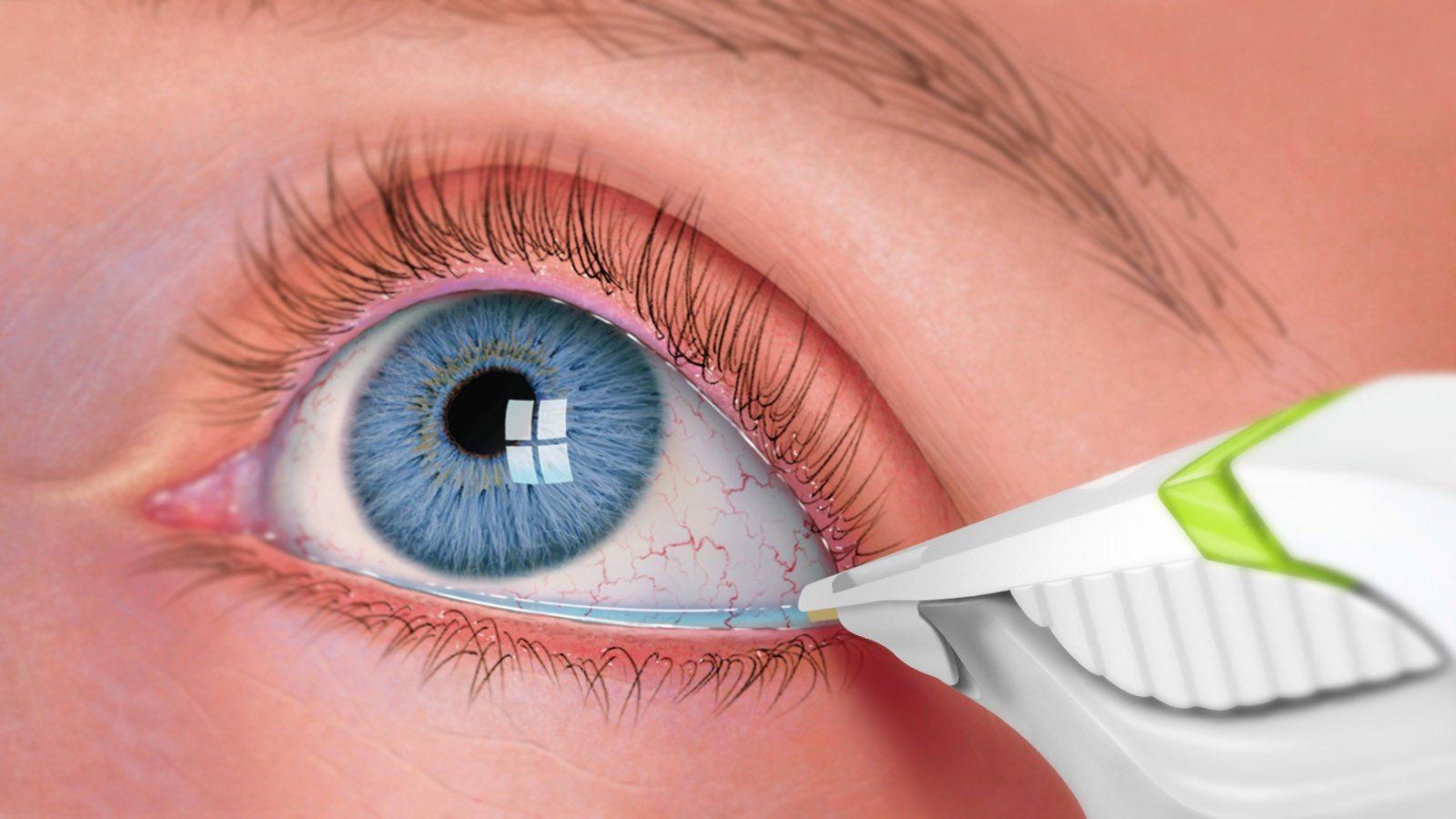 Анализ слез поможет предсказать осложнения при сахарном диабете первого типа