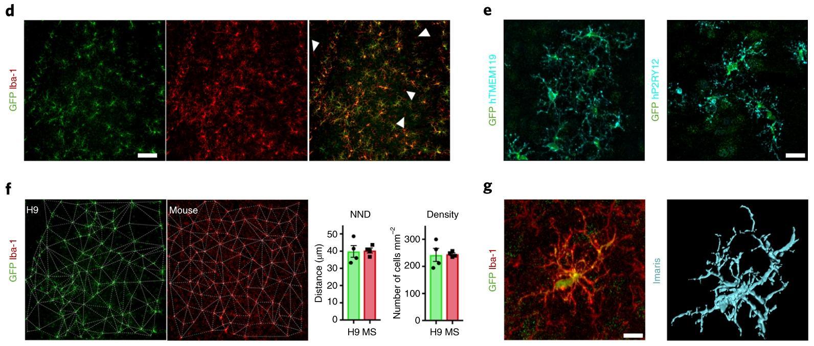 Человеческую микроглию имплантировали в мышей