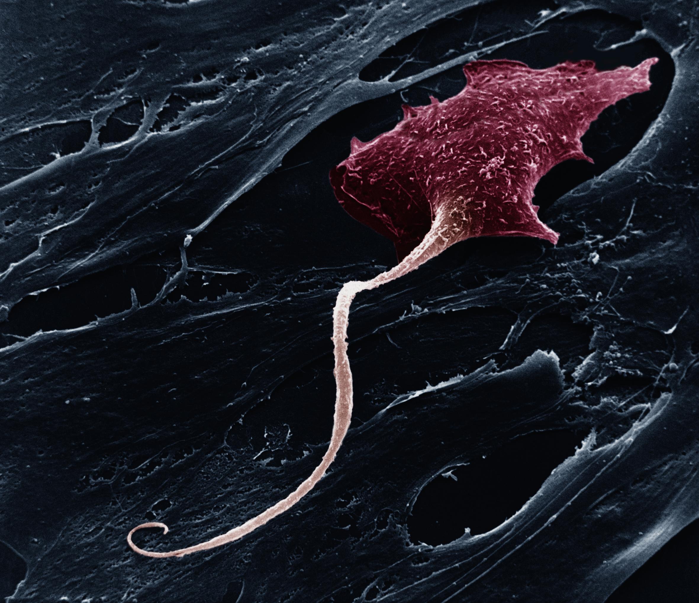 В мозге нашли «экспресс»-нейроны