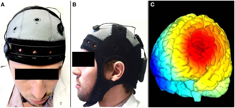 Как улучшить мозг, выпуск 13. Как электричество может снять боль