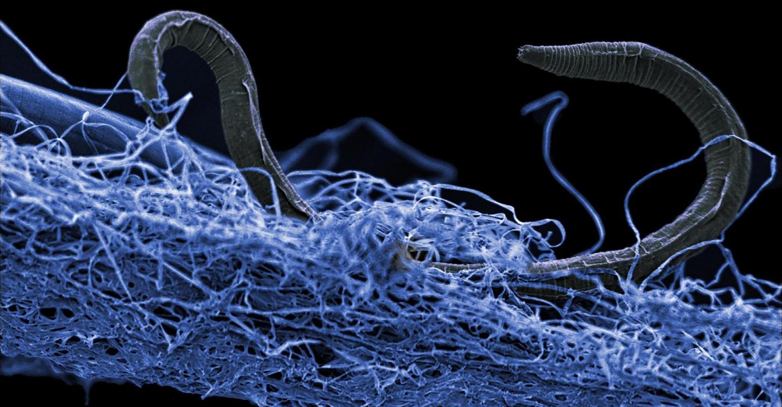 Исследователи секвенировали геном «дьявольского червя»