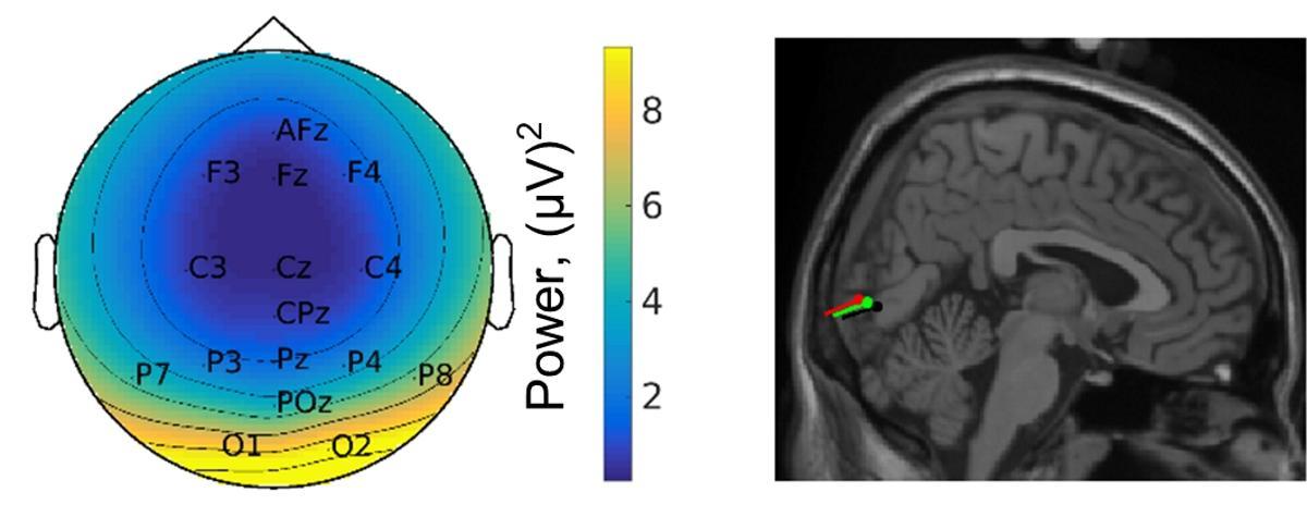 Ходьба улучшает работу мозга?