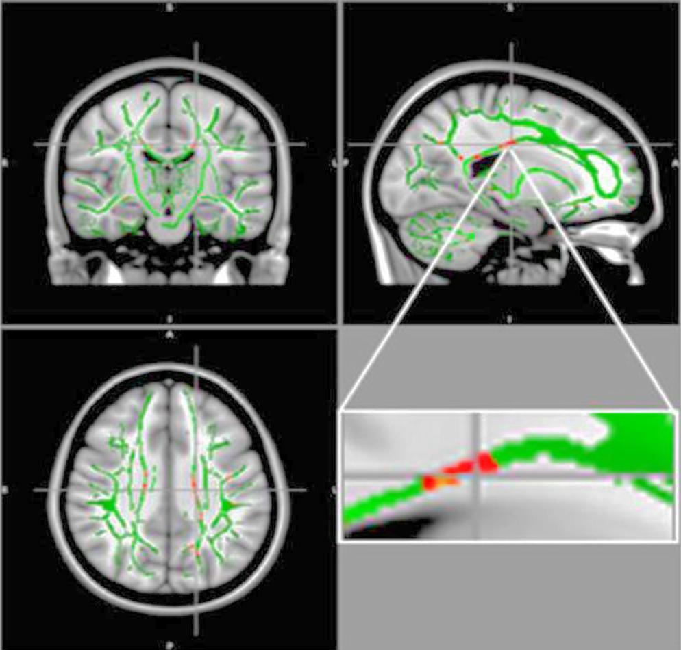 МРТ выявляет повреждение мозга у подростков с ожирением