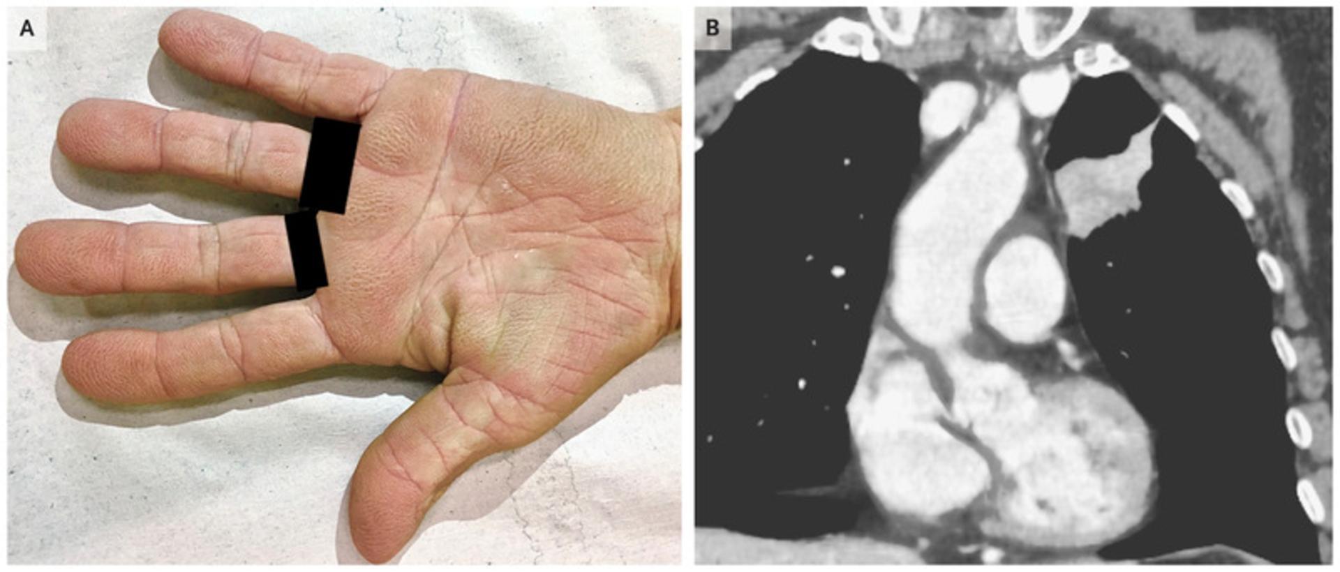 «Бархатистые руки» помогли поставить диагноз рака легкого