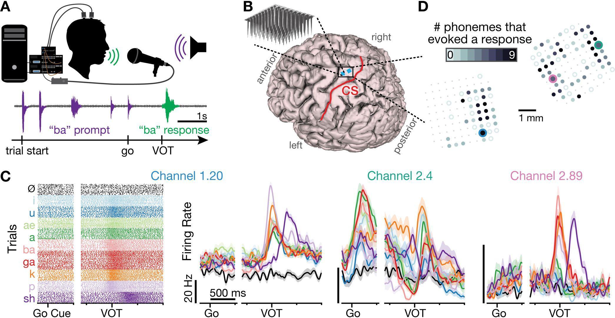 В двигательной коре мозга нашли речь