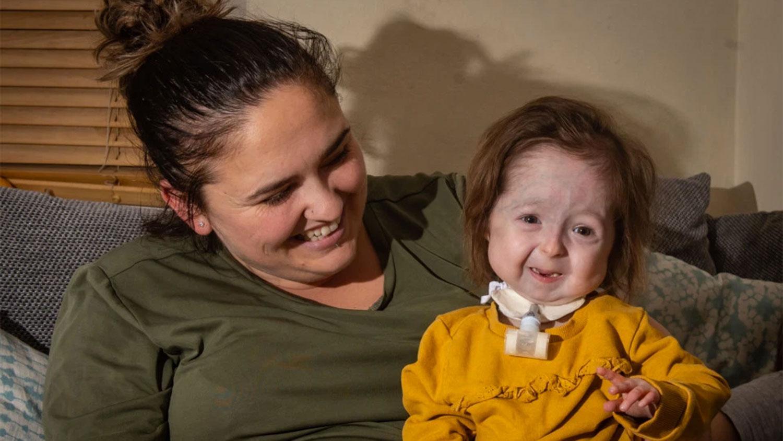 В Британии живет девочка с «болезнью Бенджамина Баттона»