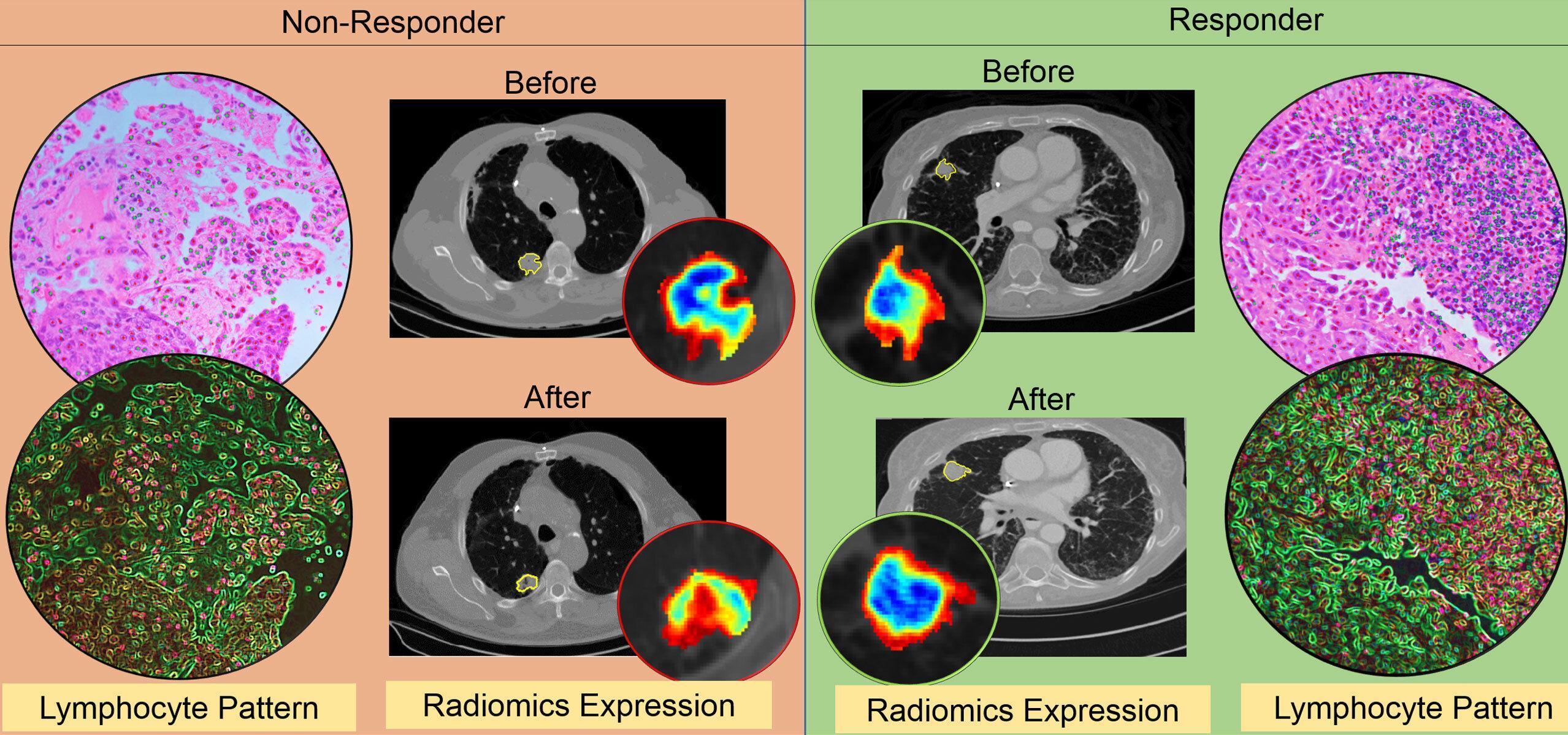 Сработает ли иммунотерапия? Искусственный интеллект предскажет