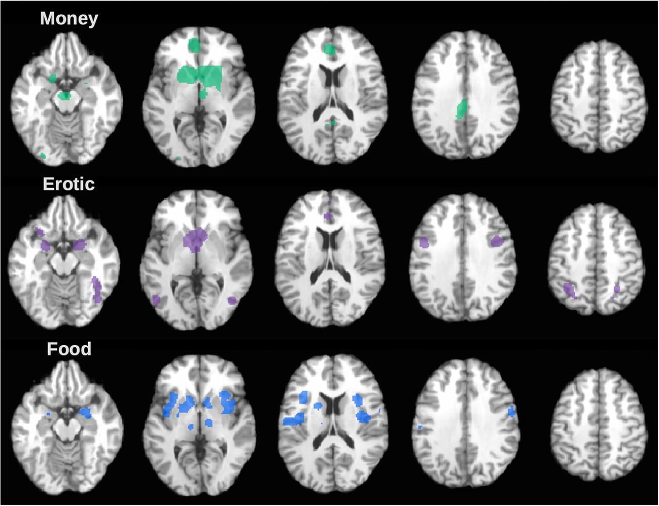 Мозг различает удовольствия от эротики, сладкого и денег