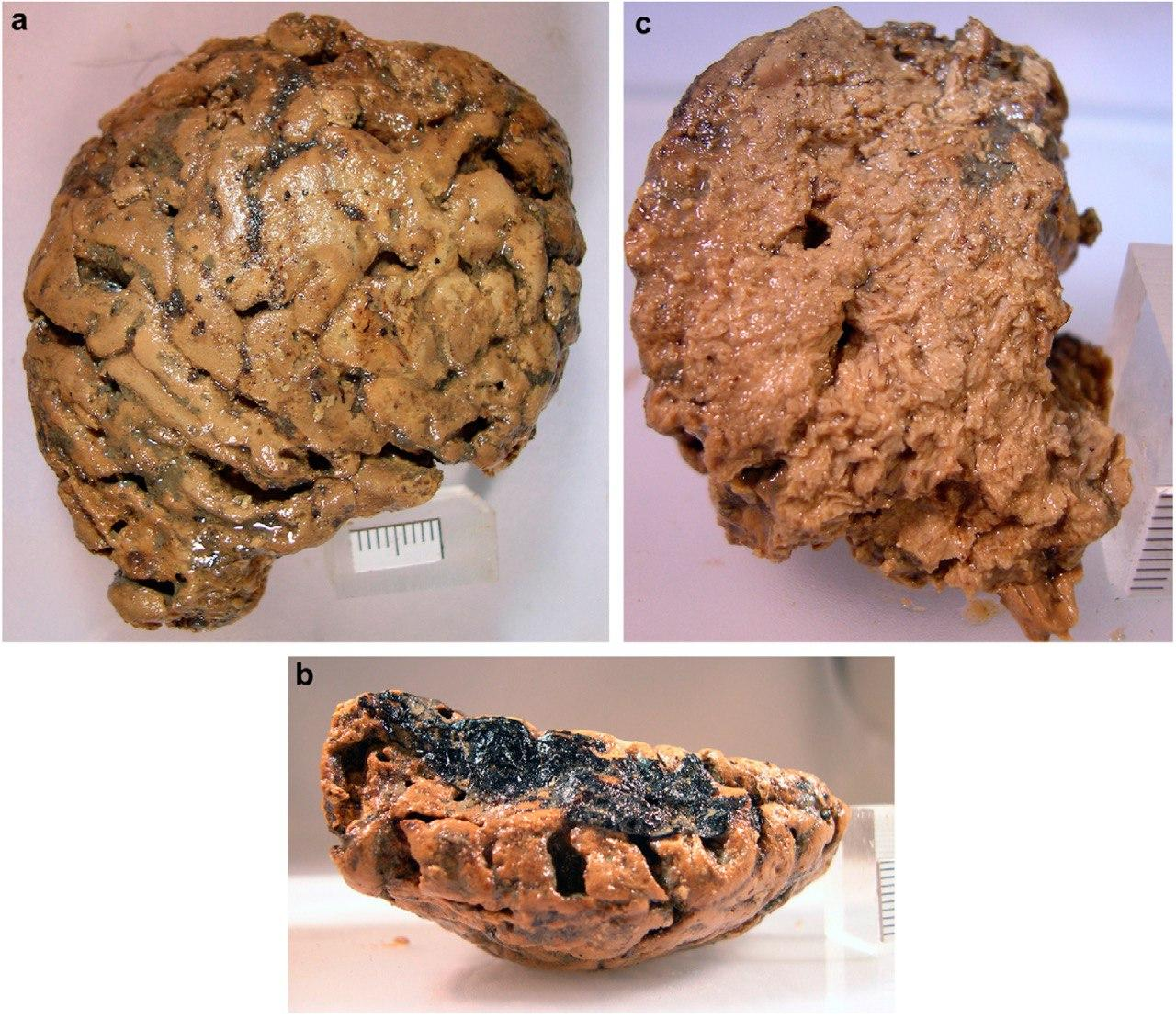 Неизвестное вещество: мозг британца не сгнил за 2000 лет