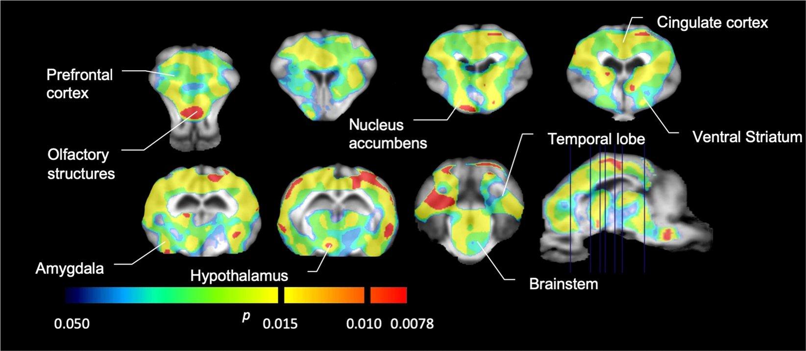 Потребление сахара изменяет биохимию мозга