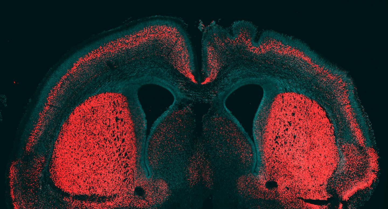 Как эволюция увеличила наш мозг