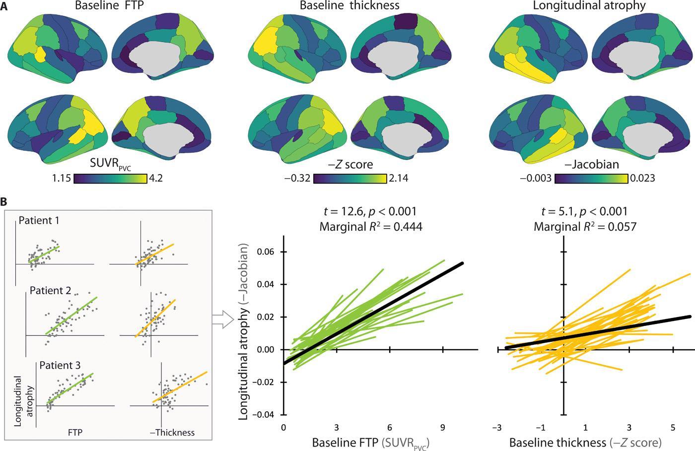 Тау-белок предскажет атрофию мозга при раннем «Альцгеймере»