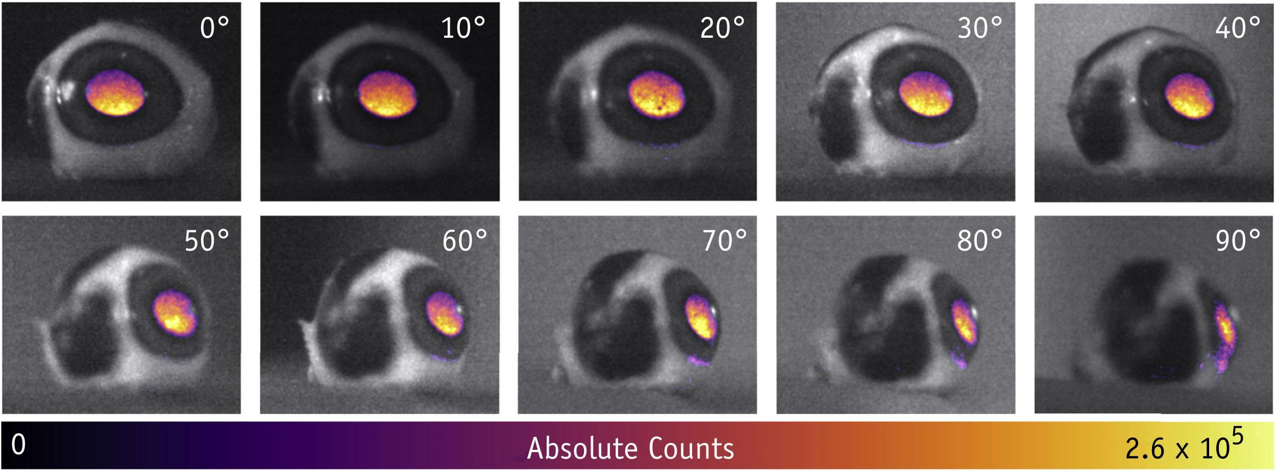 Вспышки в глазах: движение быстрее скорости света
