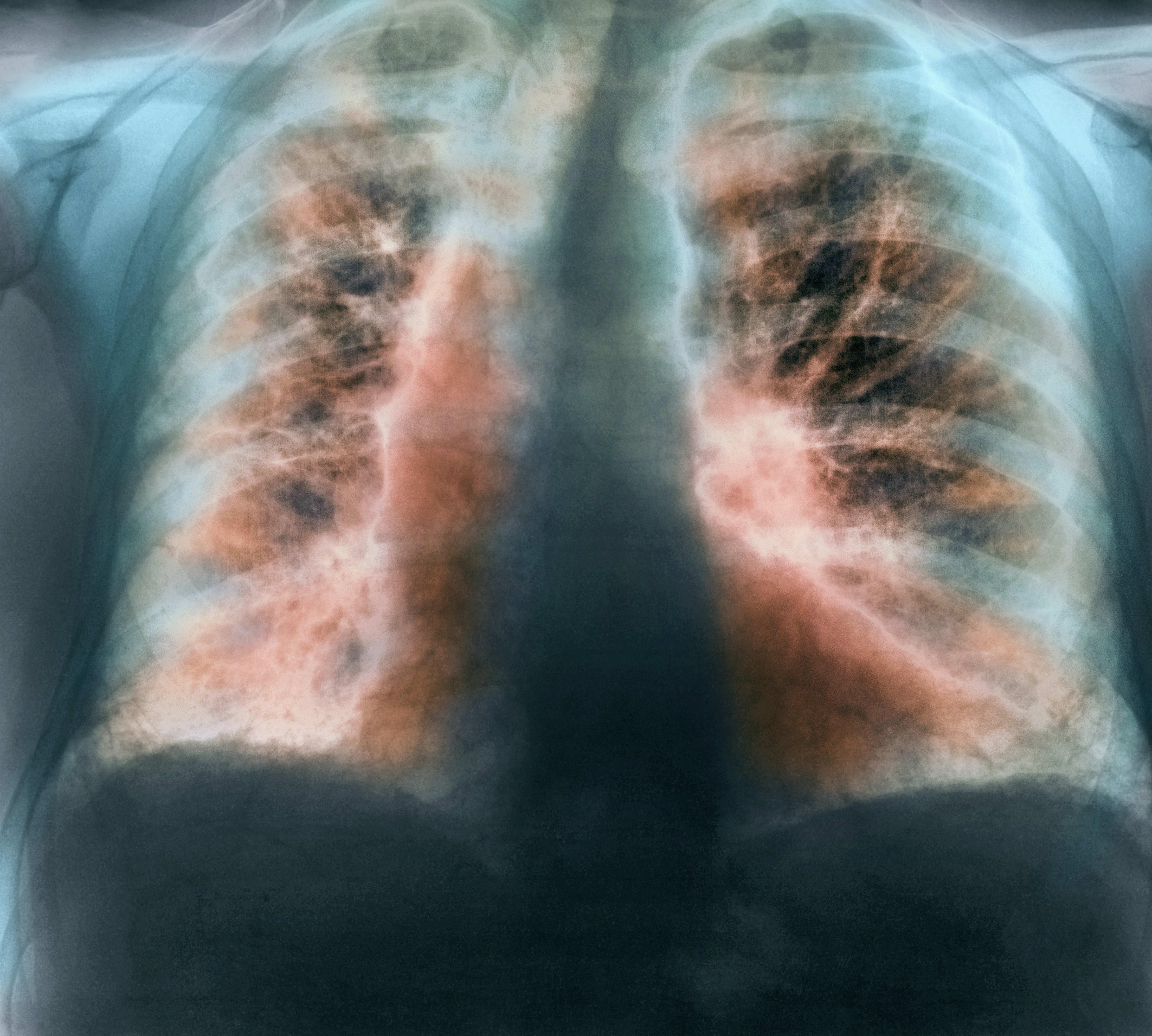 Слишком длинный и слишком короткий сон связали с повышенным риском фиброза легких