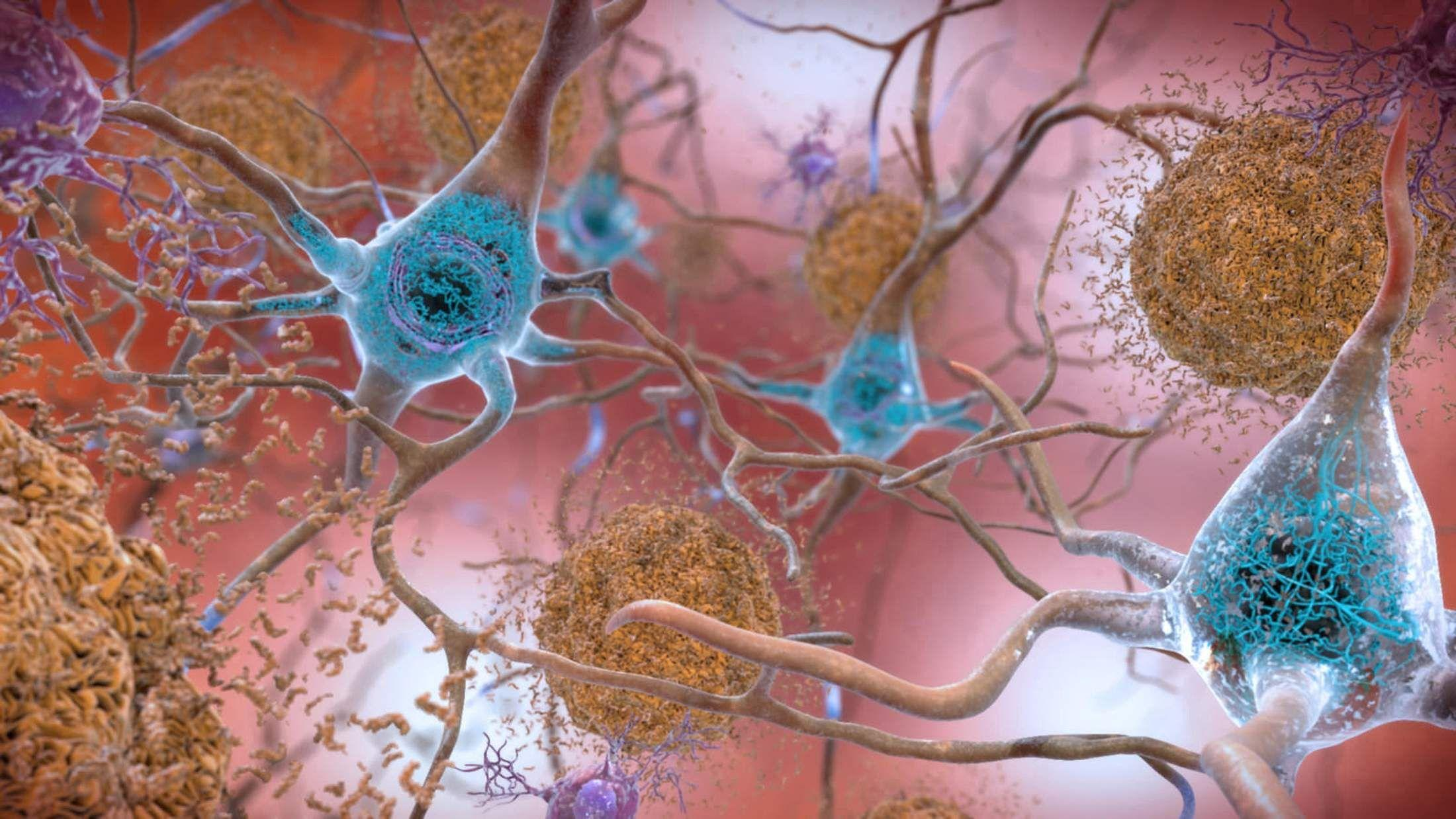 Ученые обнаружили в здоровом мозге функциональный амилоид