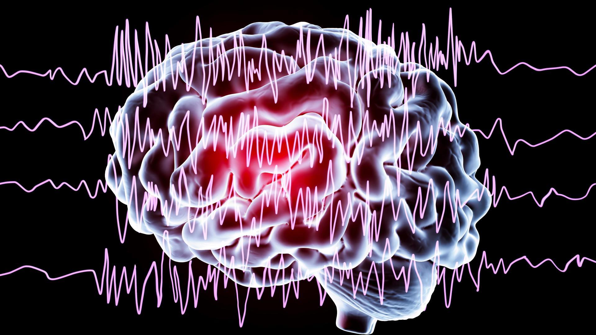 Как улучшить мозг. Выпуск 14. Память при эпилепсии: поможет ли электрический ток?