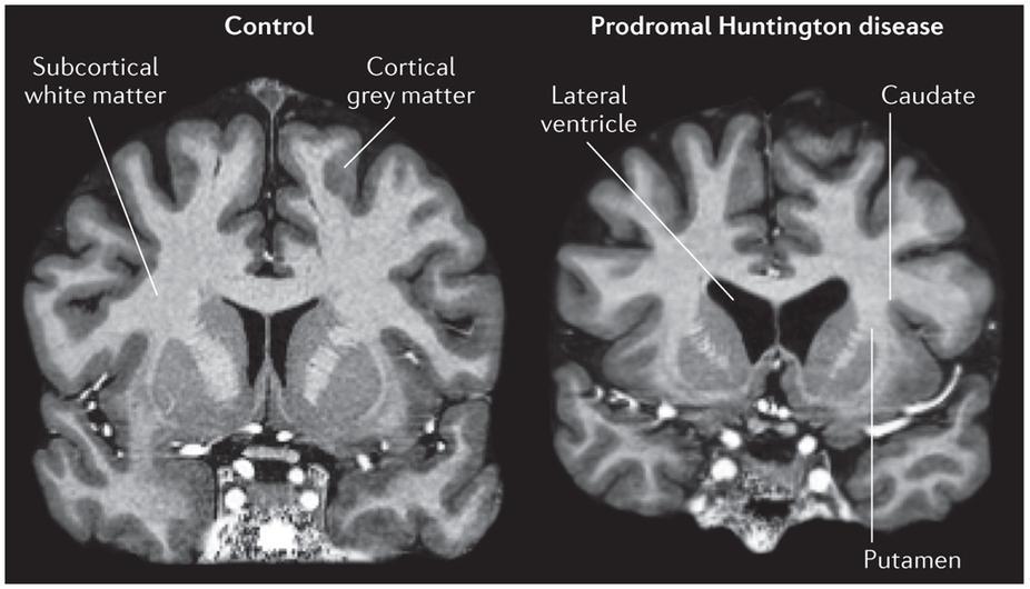 Ученые устранили у мышей повторы ДНК, связанные с болезнью Гентингтона