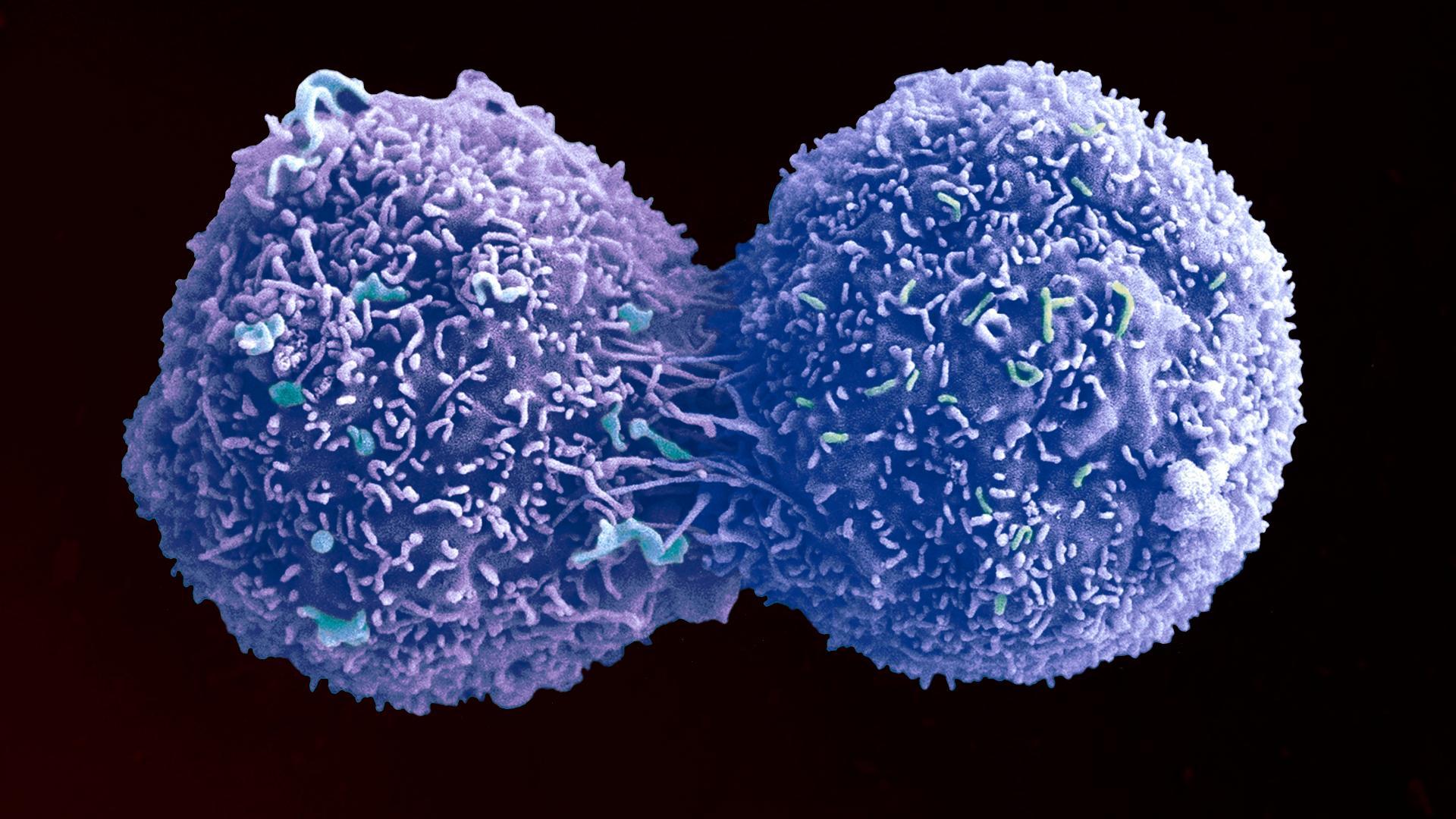 Раковые опухоли оставят без сладкого