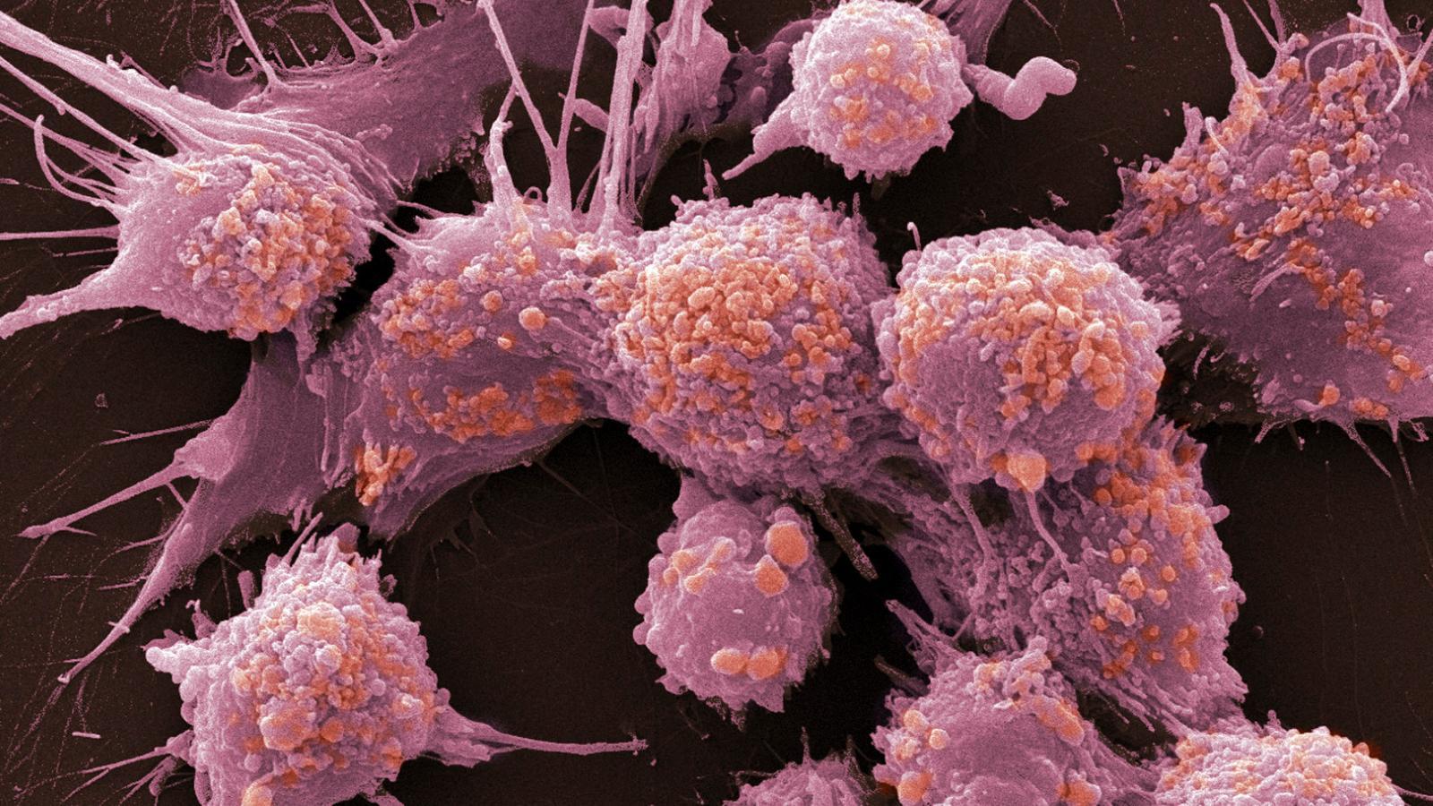 Витамин В12 помогает раковым клеткам умирать