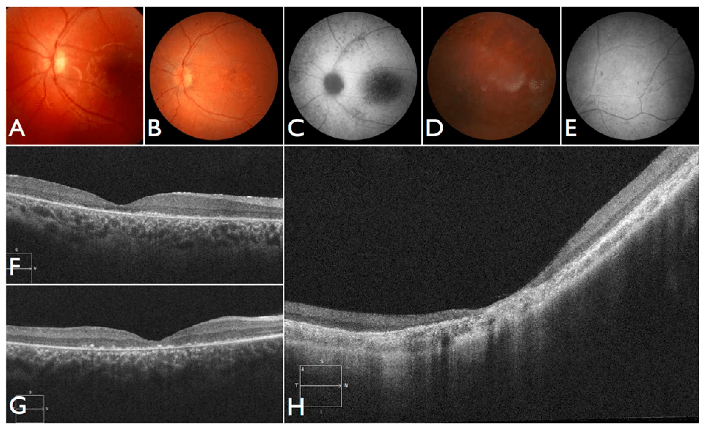 CRISPR-терапию впервые применили для лечения слепоты