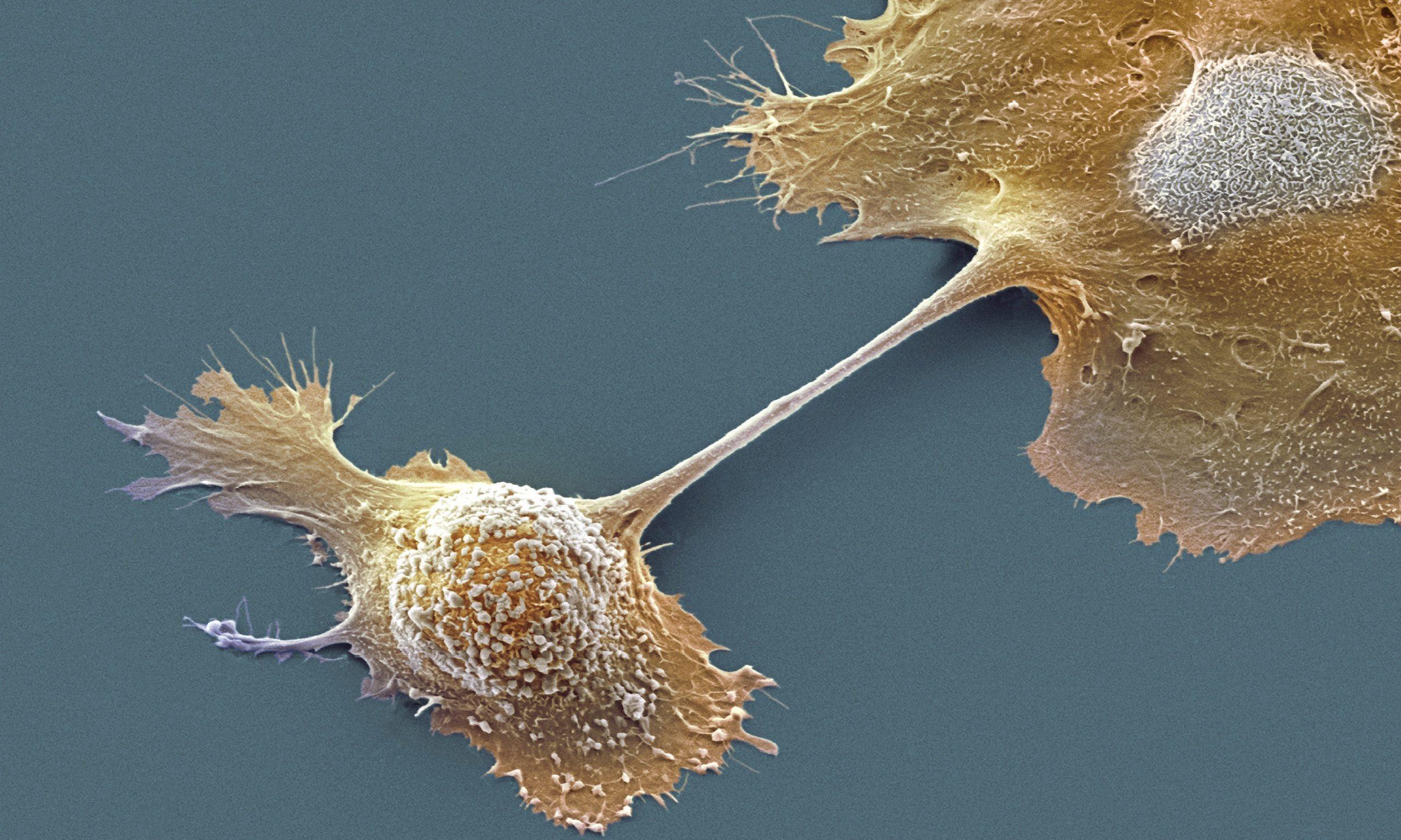 Мышечный белок помогает раковым клеткам много есть