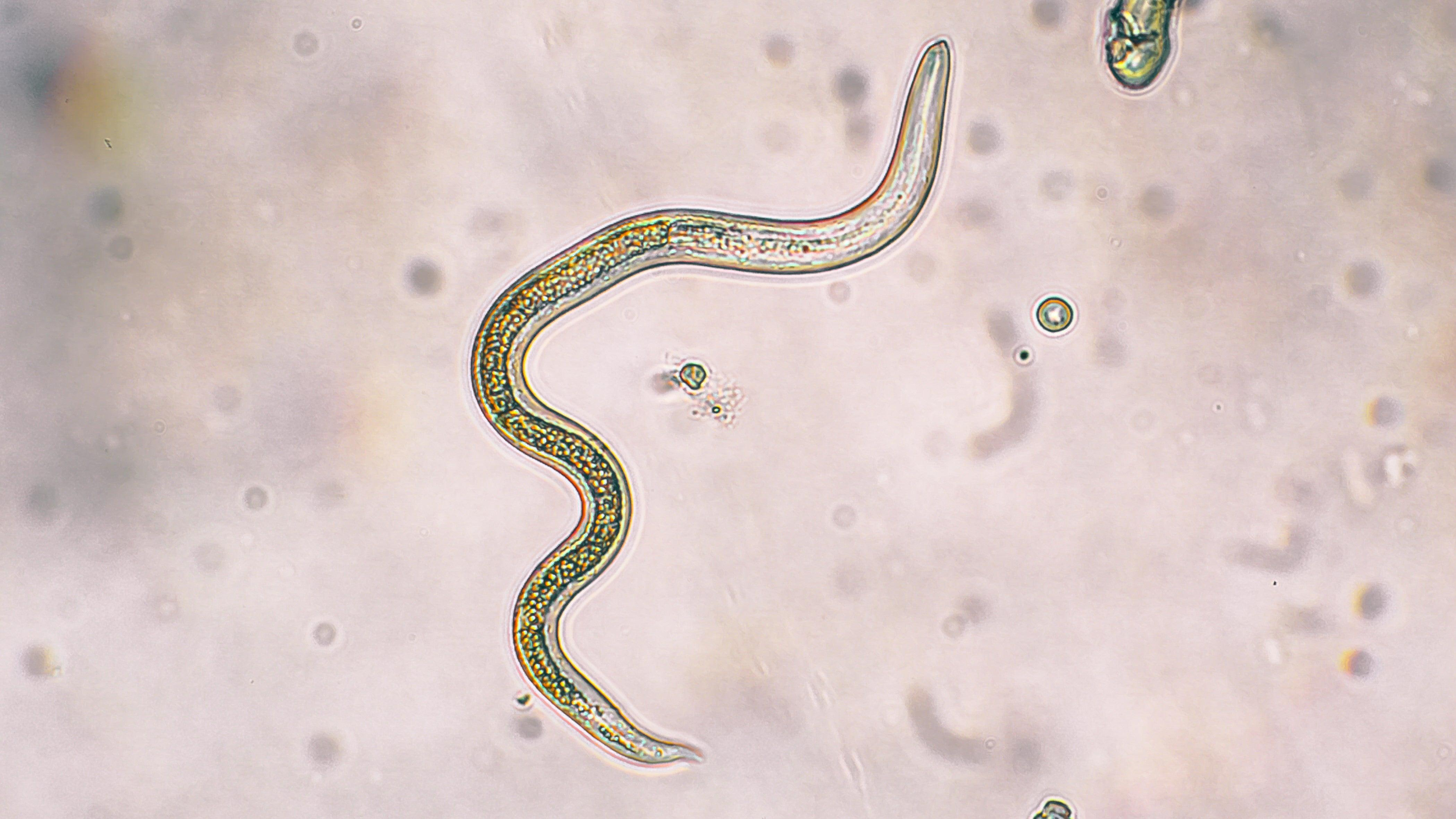 Будни врача-паразитолога