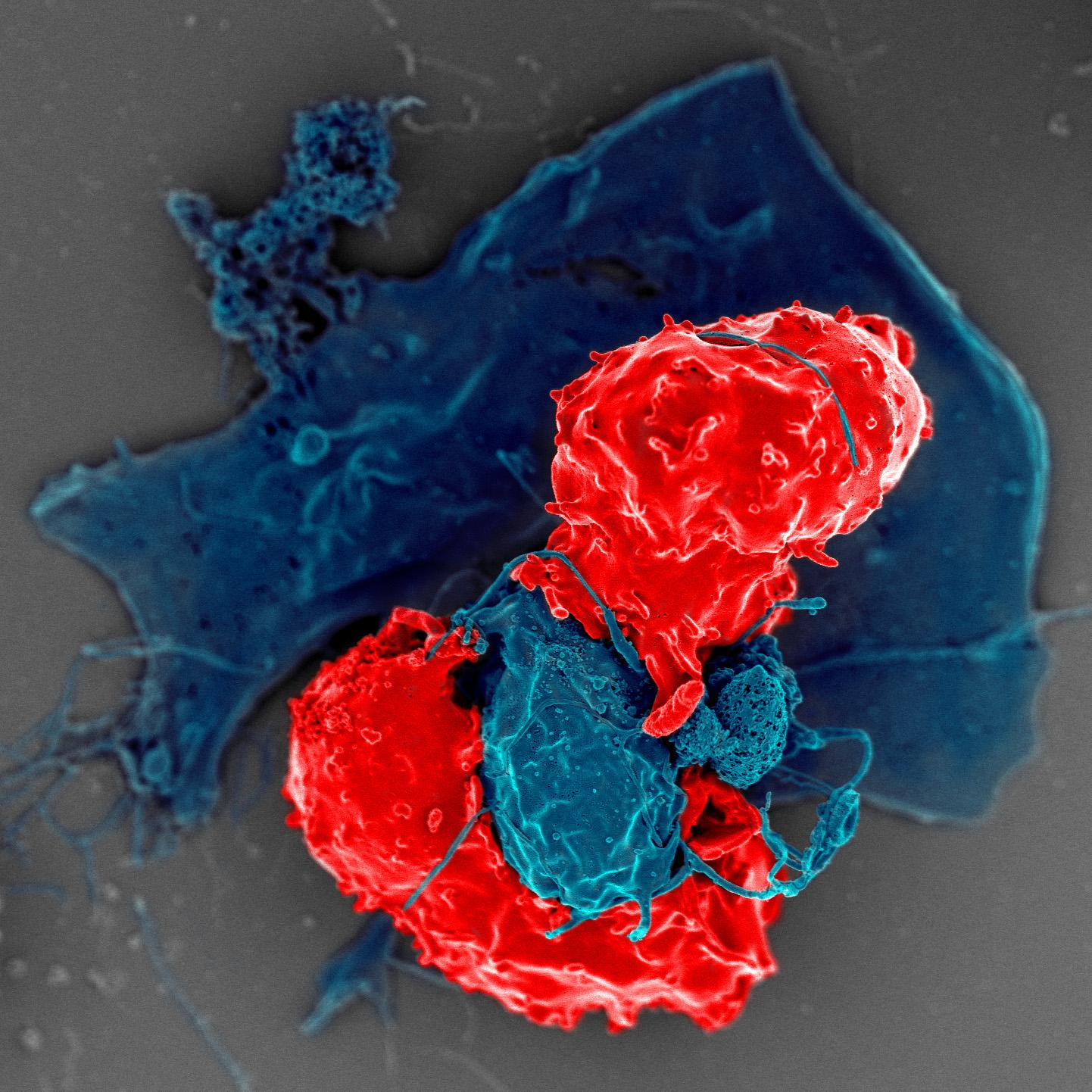 Мужской жир управляет иммунитетом по-мужски