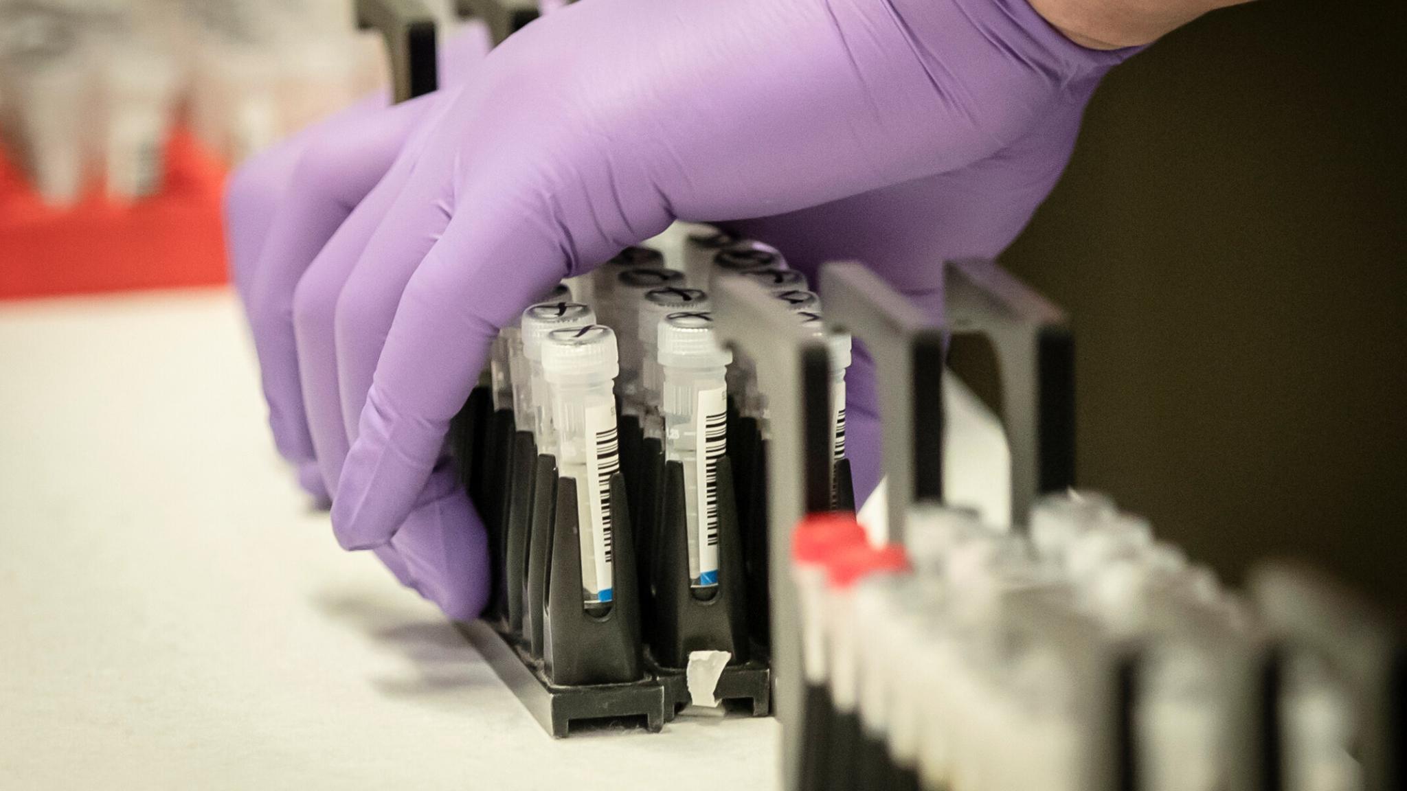 Китайские ученые утверждают, что многие люди не вырабатывают антитела к SARS-CoV-2