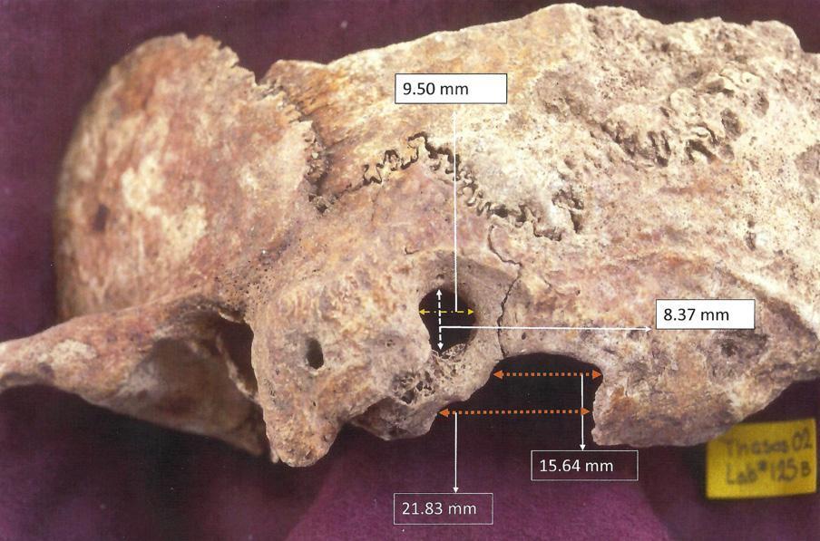 Голова дырявая: как оперировали в Римской Империи