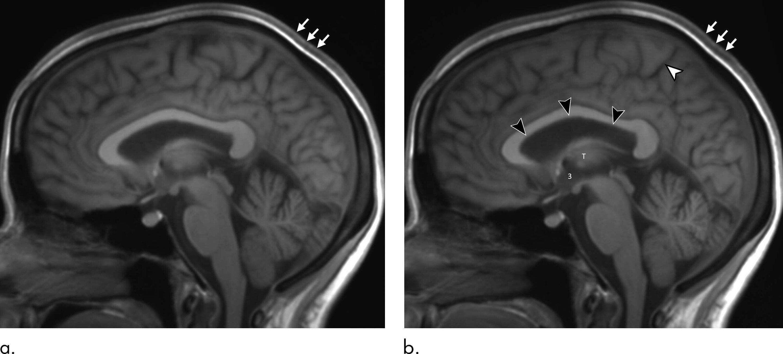 Еще одно воздействие космического полета на головной мозг