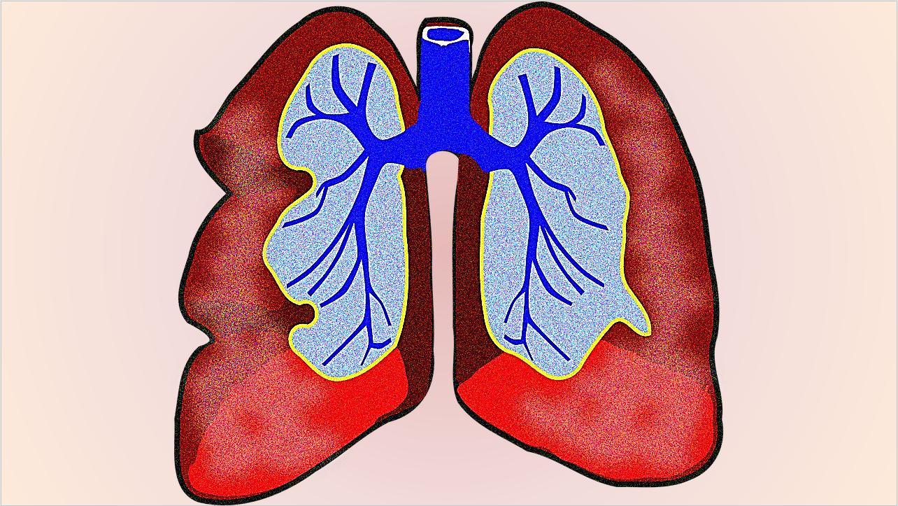 Люди с какими сопутствующими заболеваниями чаще умирают от COVID-19?