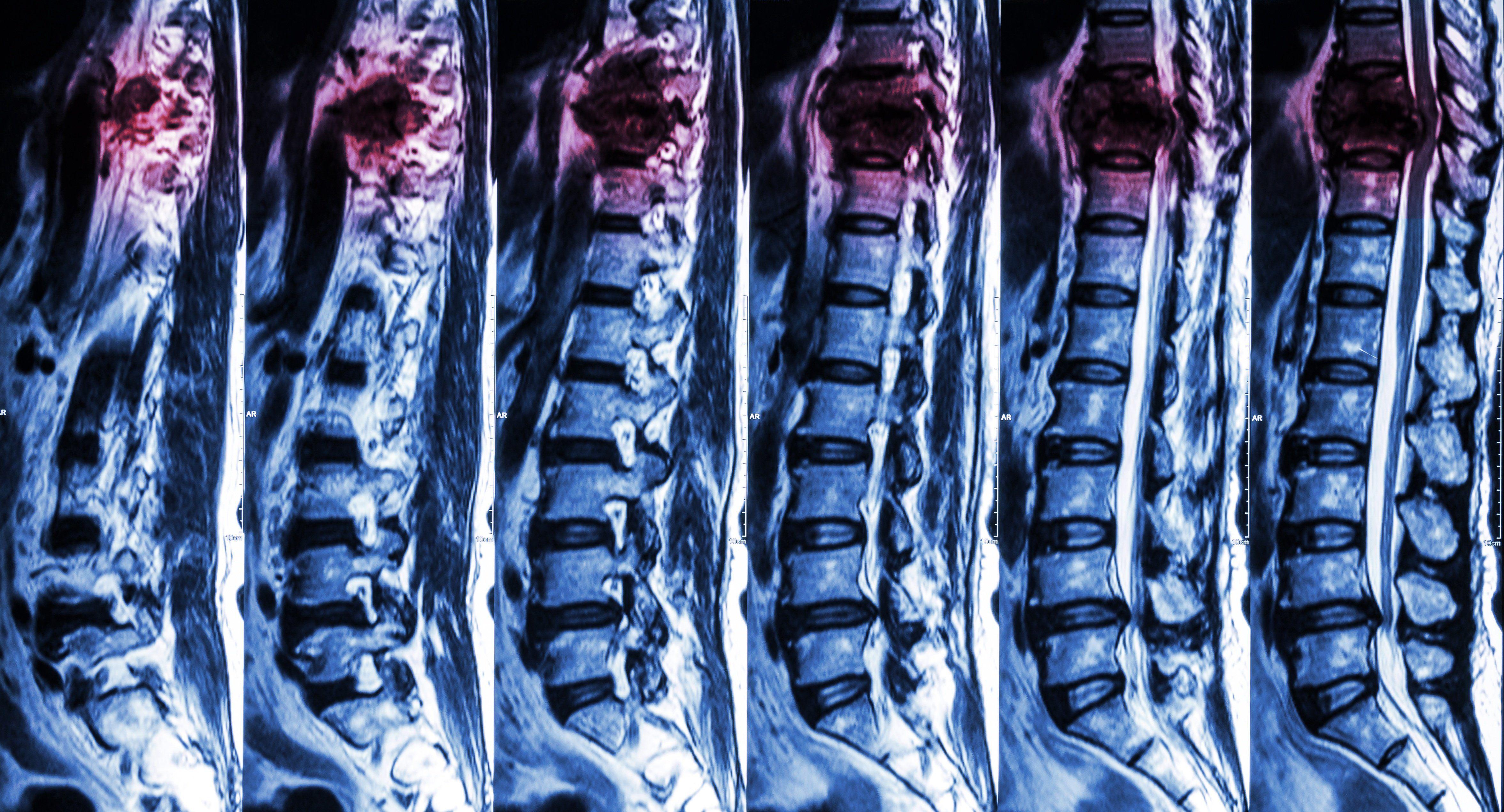 Как склеить спинной мозг