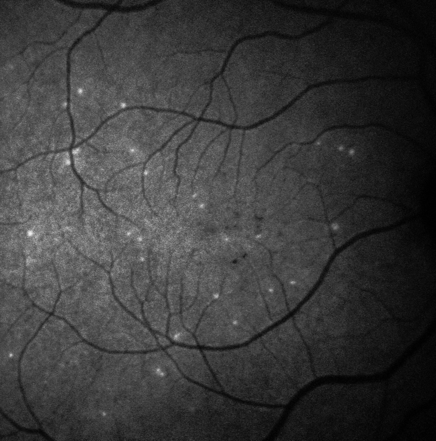 Искусственный интеллект помог диагностировать прогрессирующую глаукому