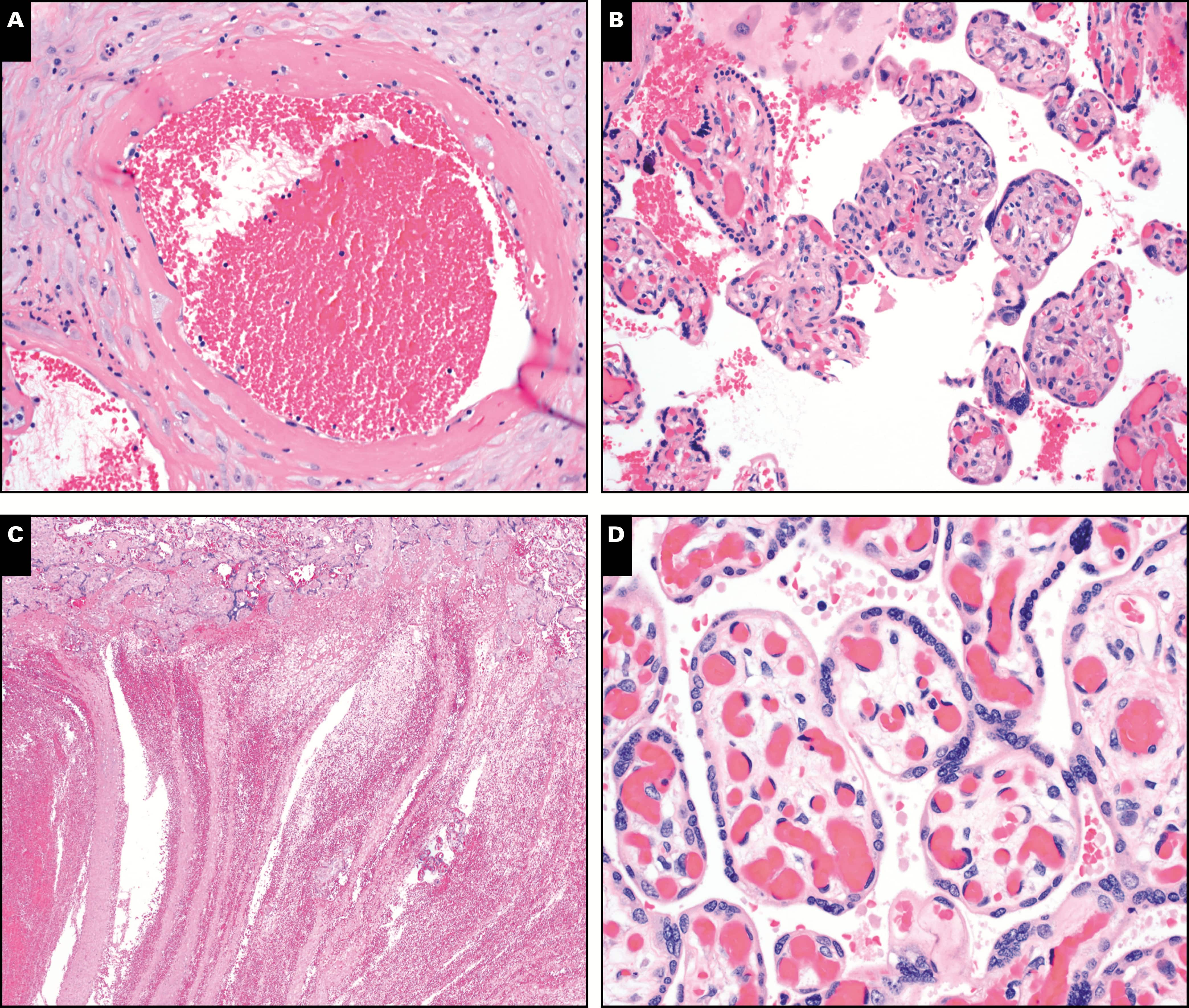 Ученые рассказали о повреждениях плацент у женщин, больных Covid-19