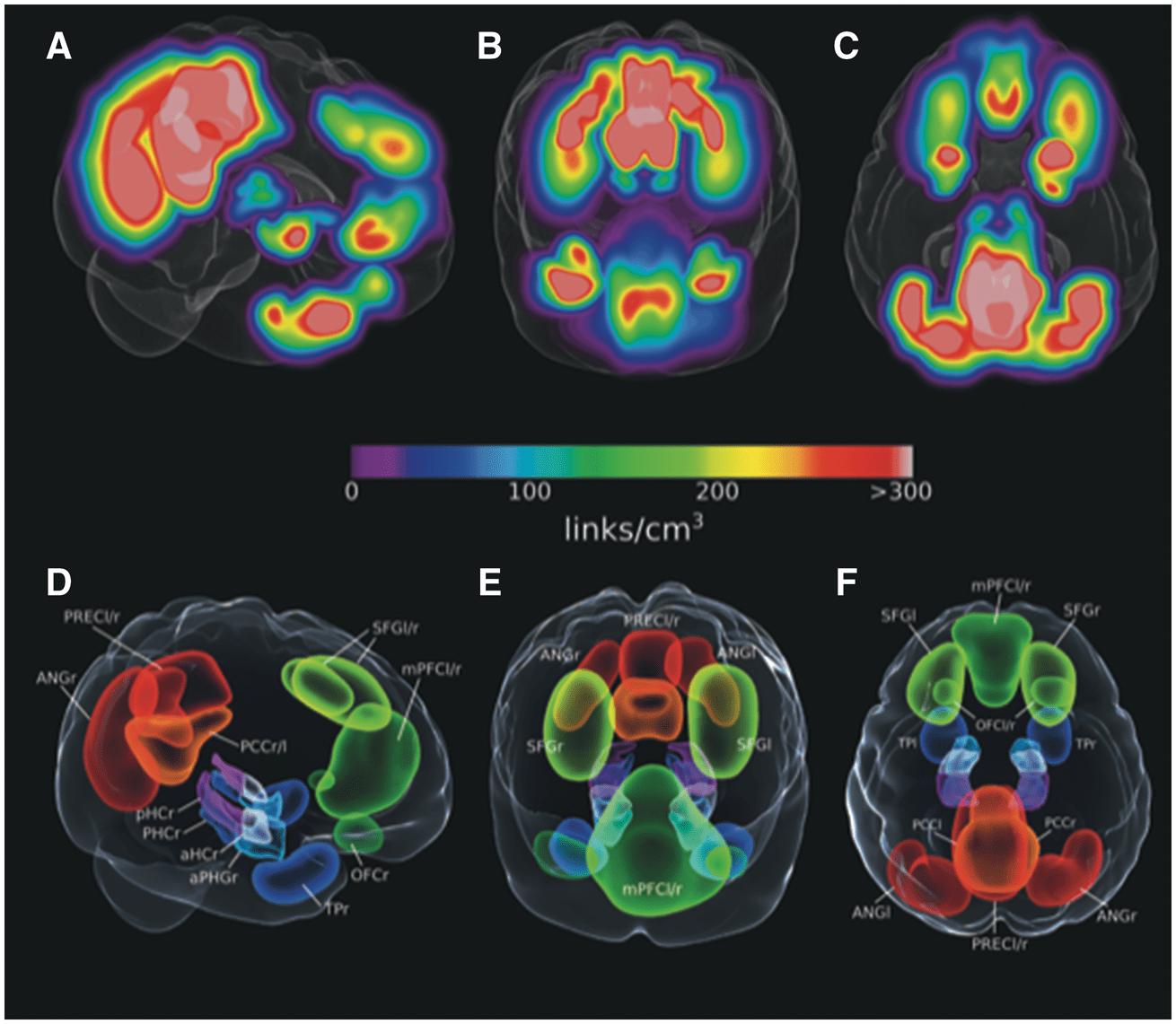 Изменения в связности височной доли укажут на раннюю болезнь Альцгеймера