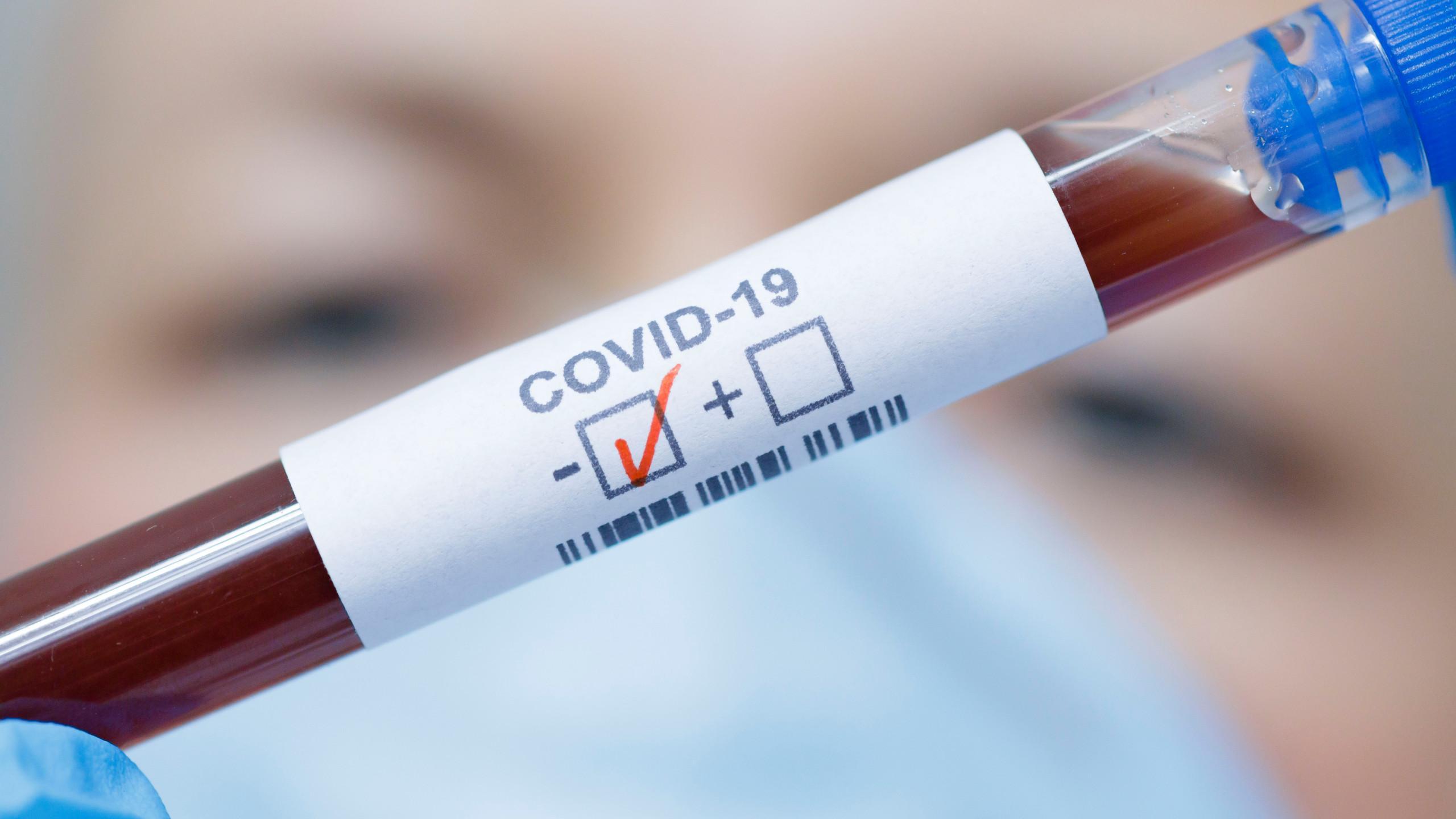 Антитела пациента после «атипичной пневмонии» нейтрализовали коронавирус SARS-CoV-2