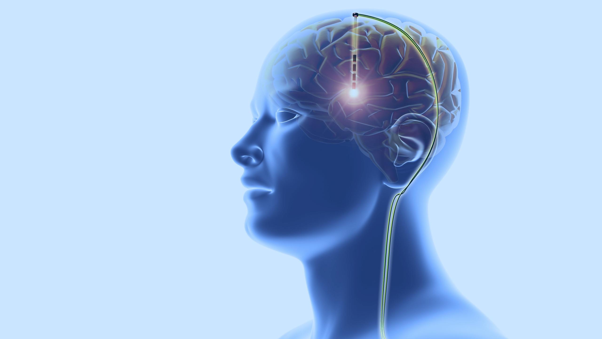 Как улучшить мозг. Выпуск 31. Что такое контроль за разумом?