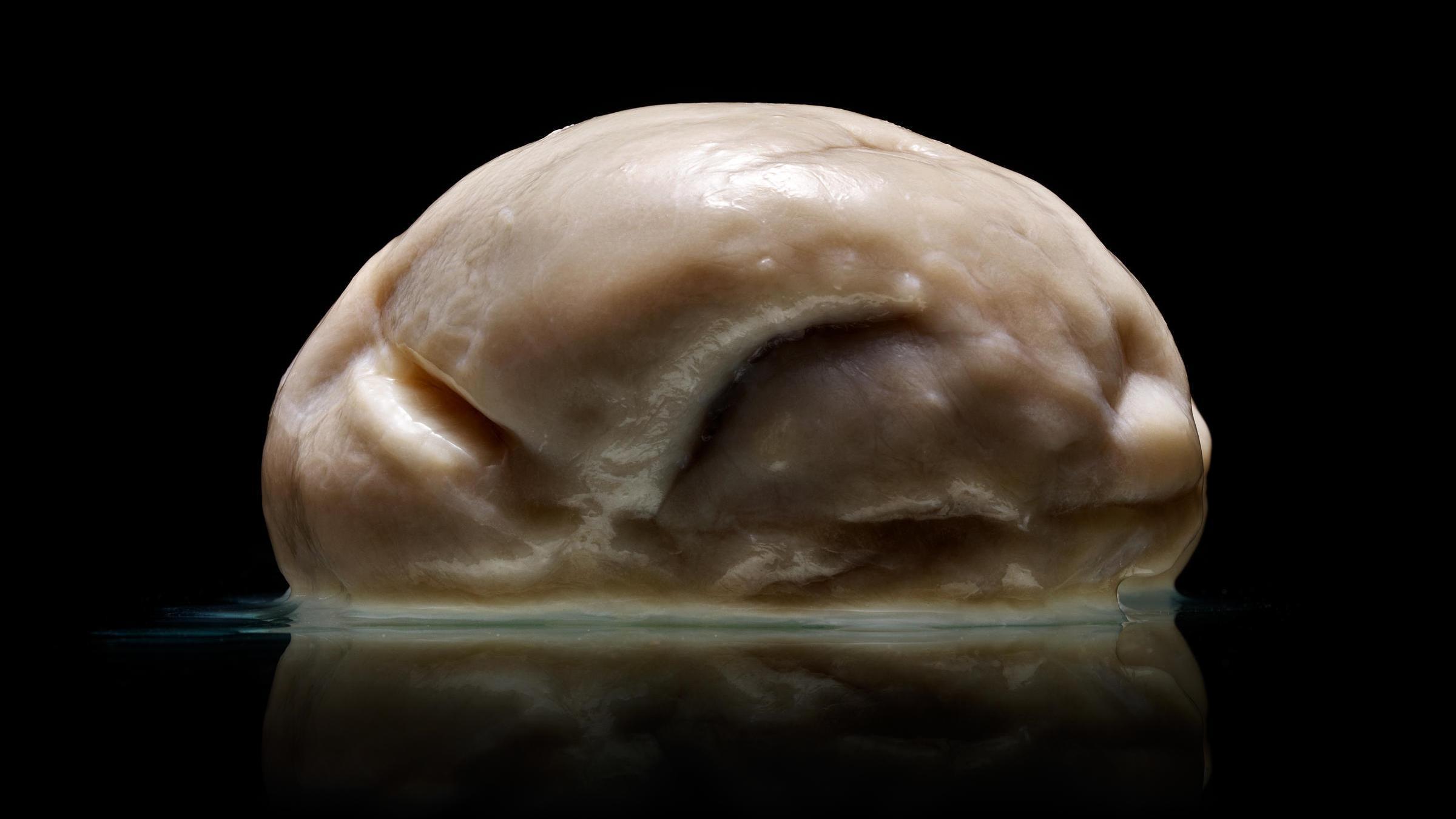 Найден новый ген, связанный с развитием «гладкого мозга»
