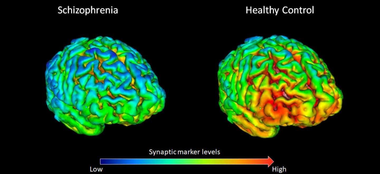 У шизофреников обнаружили недостаток белка в синапсах