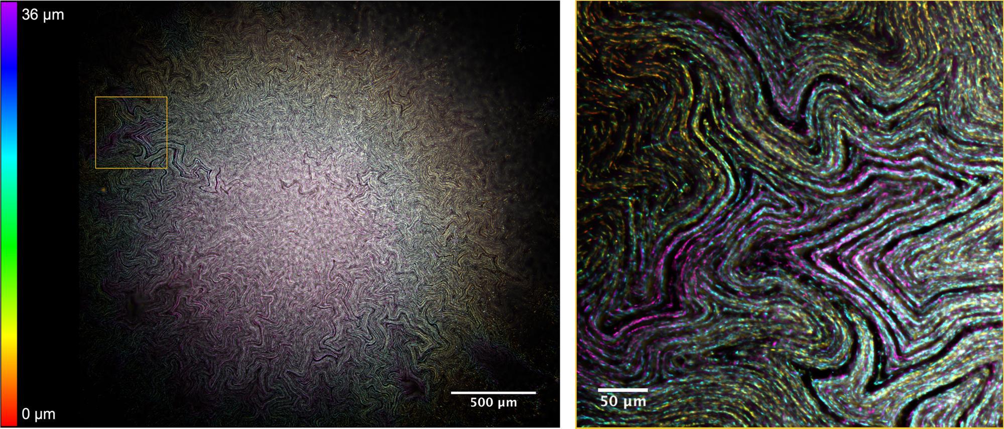 Биологи нашли «тайный ход» внутрь бактериальных биопленок
