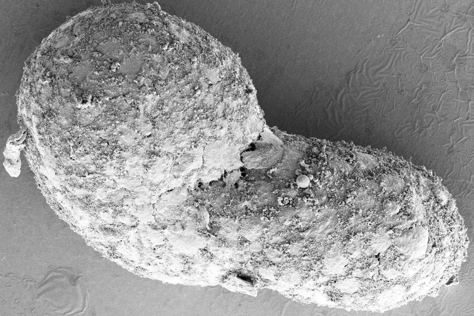 Ученые вырастили из стволовых клеток упрощенный эмбрион человека