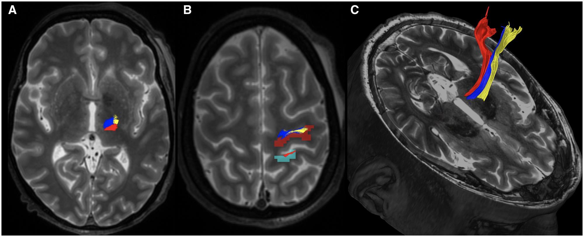 Методы МРТ помогут в лечении тремора при болезни Паркинсона