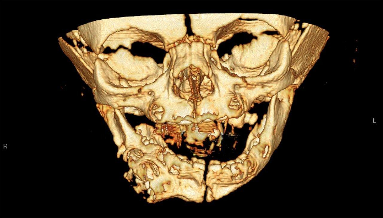 Полугодовалой девочке удалили второй рот