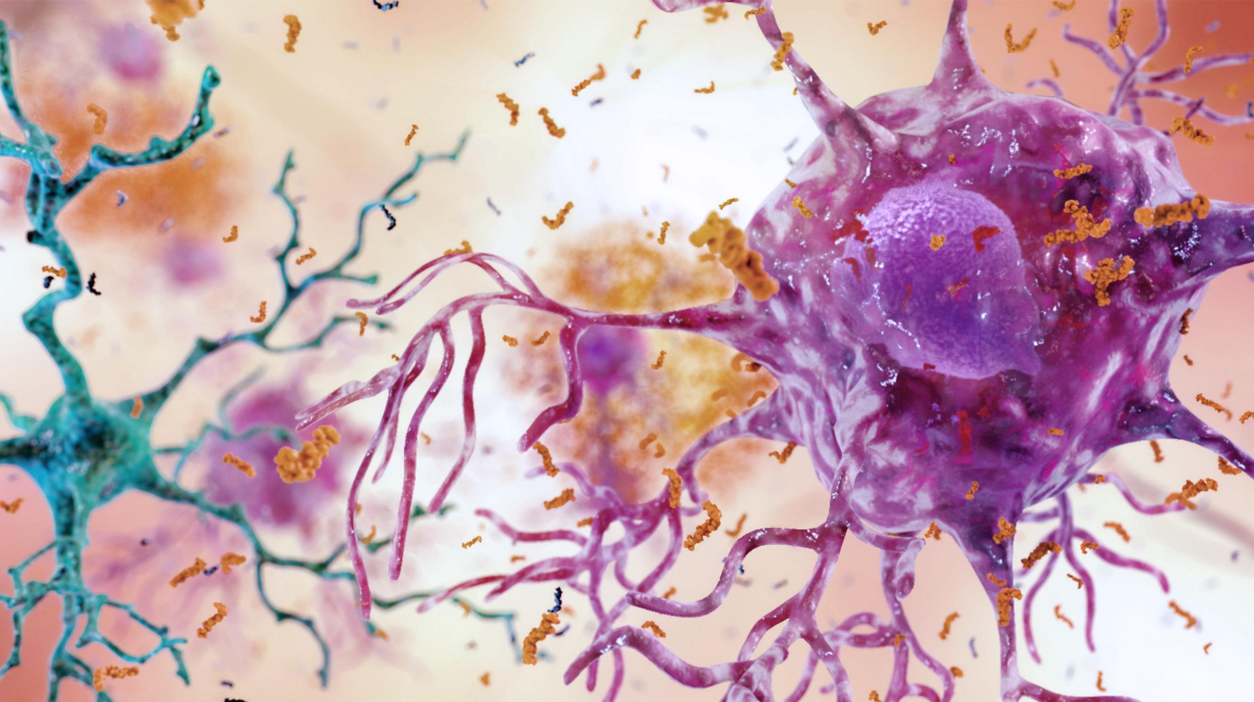 Продемонстрирована связь кишечной микрофлоры с болезнью Альцгеймера