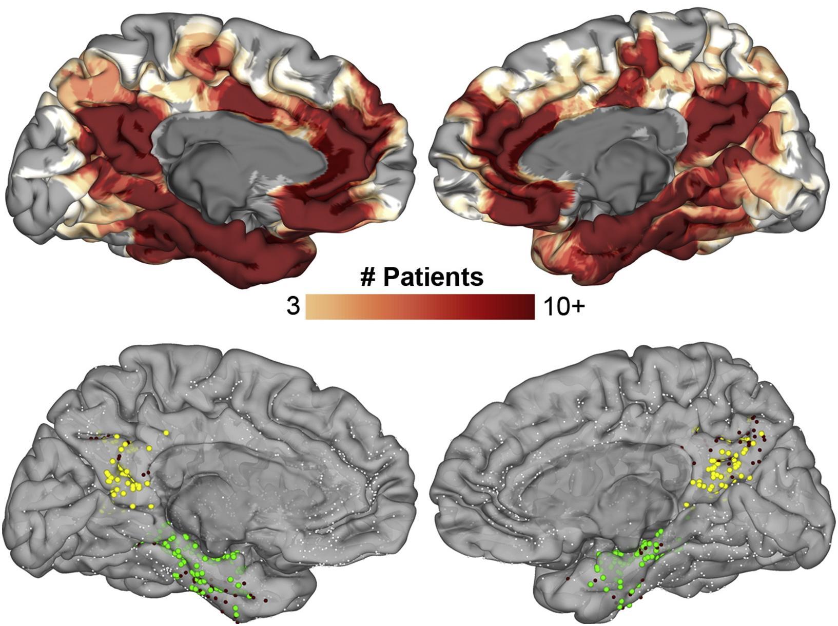 В процессах памяти участвует не только гиппокамп