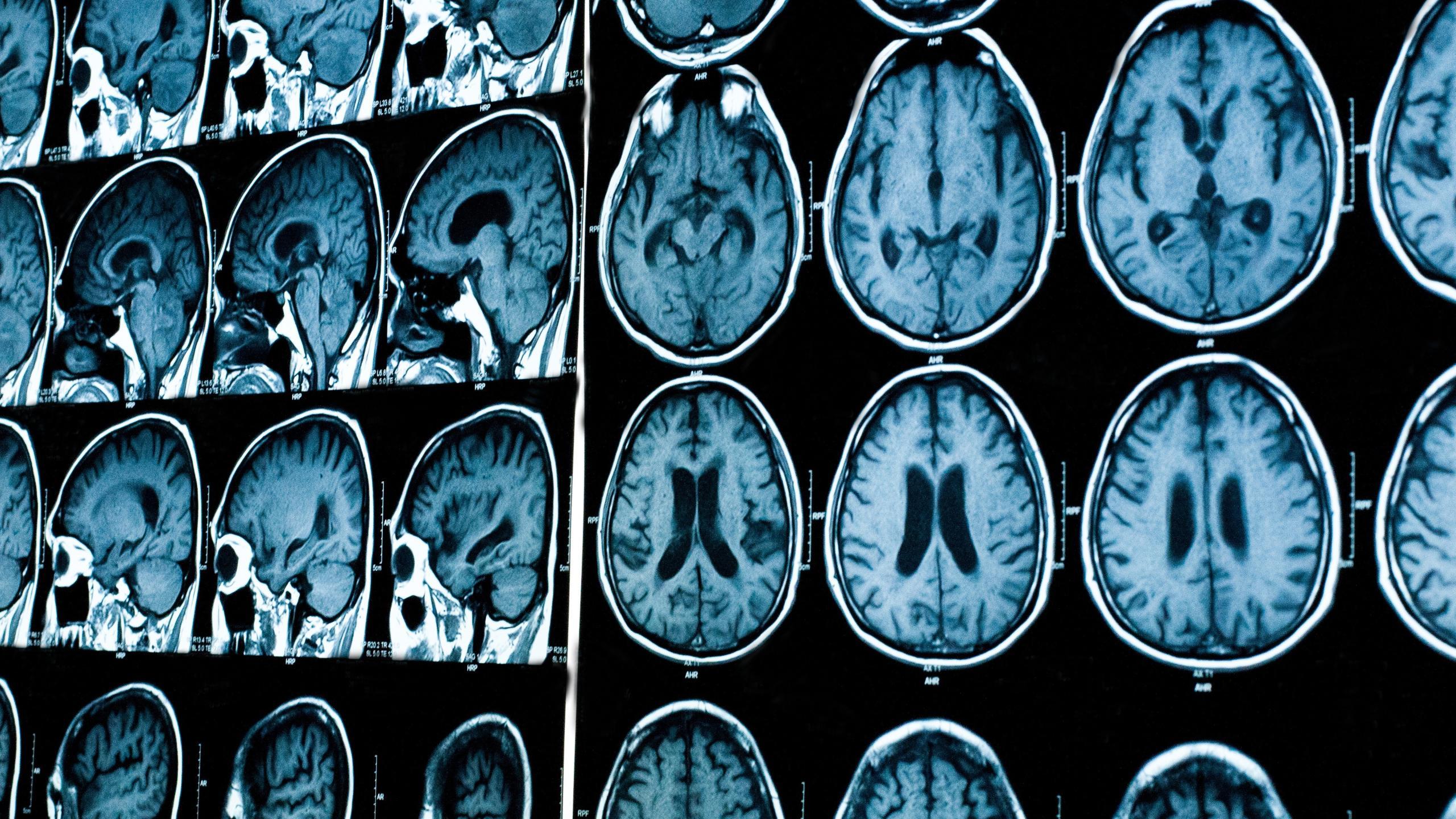 Звуки слева и справа по-разному активируют два полушария мозга