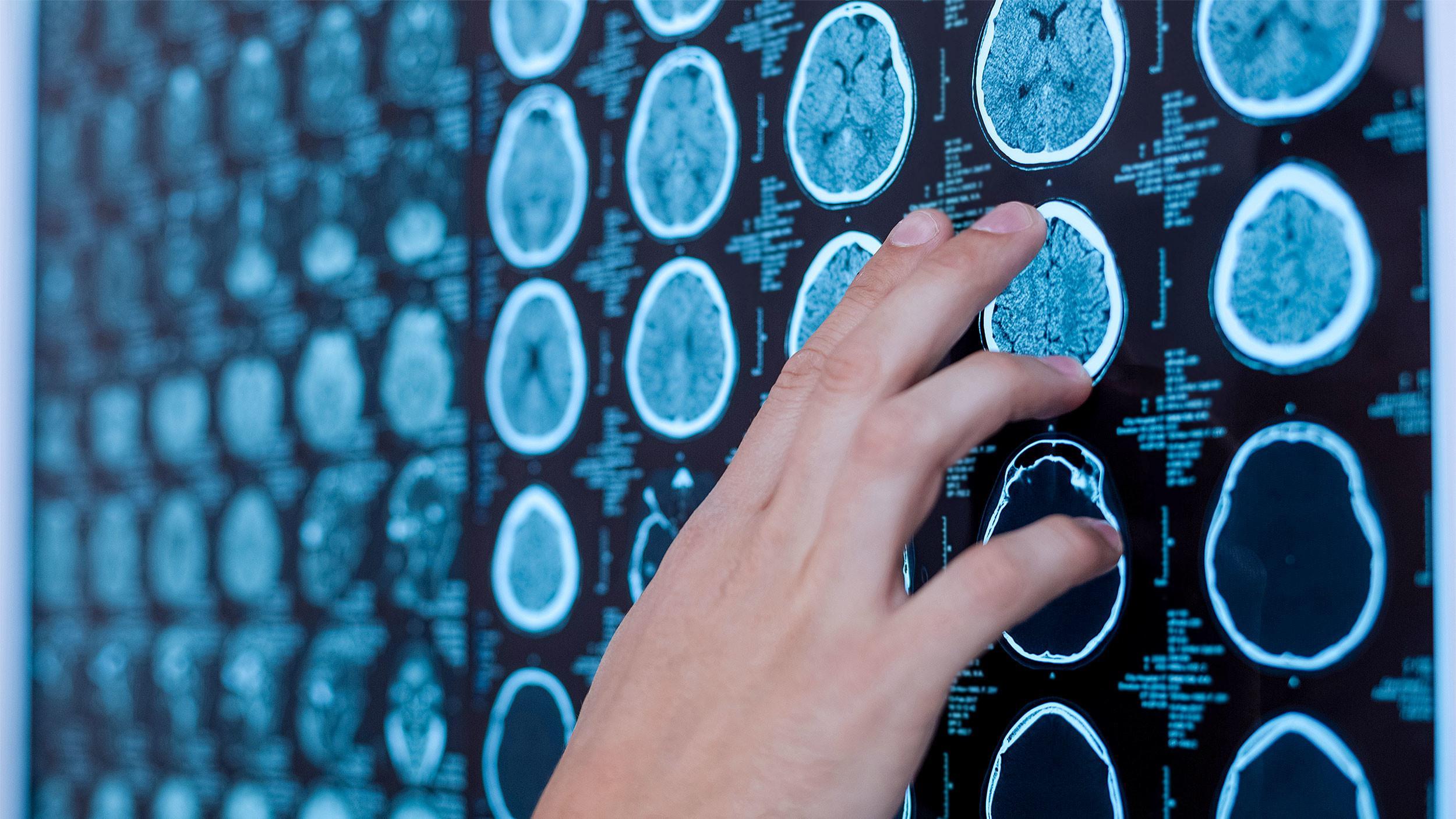 Копрофагия – признак дегенерации мозга