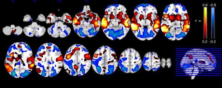Вызывайте экзорциста: как выглядит на МРТ мозг одержимой