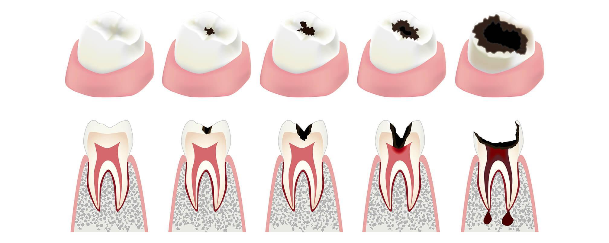 Как лечить кариес зубов: советы от стоматологии в Воронеже